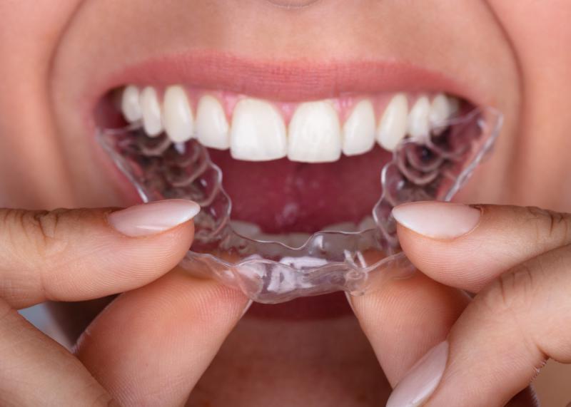 ortodonzia-invisibile-invisalign-milano