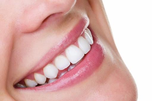 sbiancamento-denti-milano