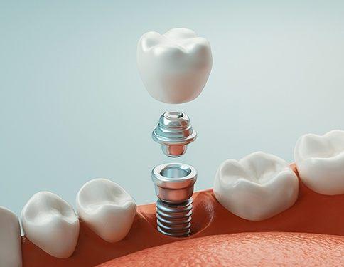 impianto-dentale-odontoiatria-estetica